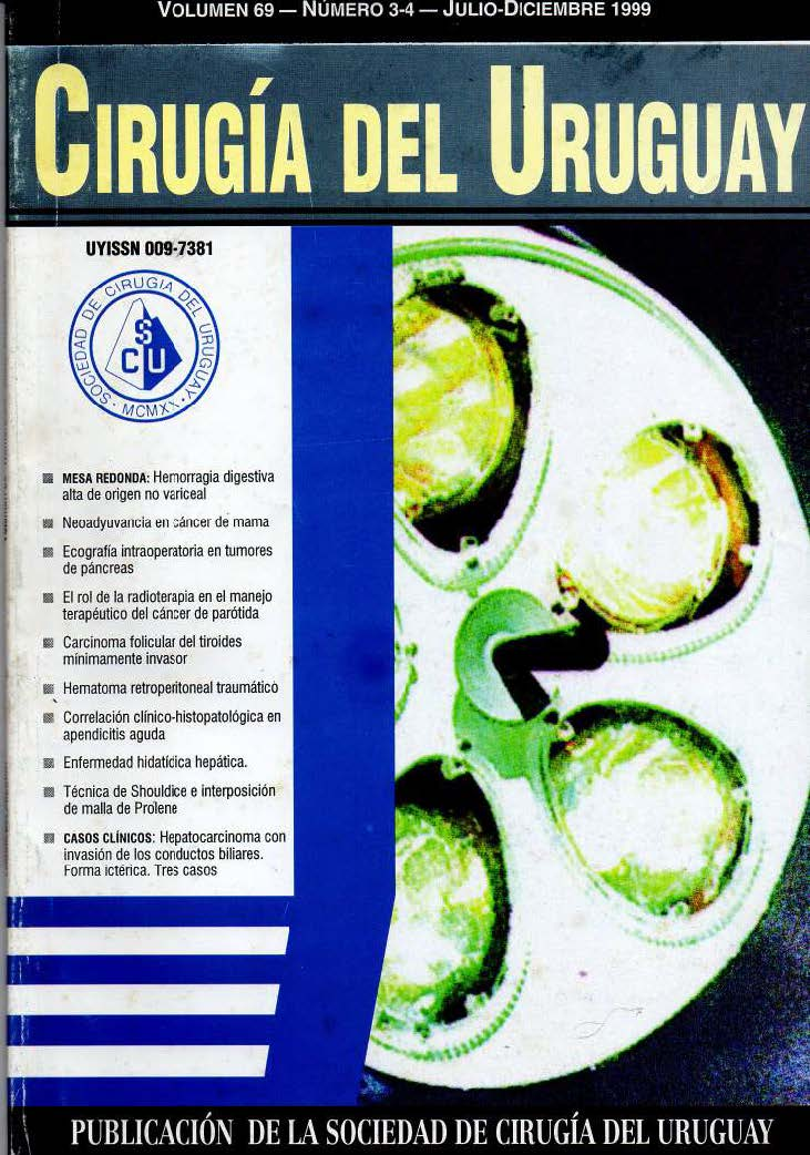 Ver Vol. 69 Núm. 3-4 (1999): Cirugía del Uruguay